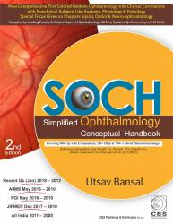 Front cover: SOCH Simplified Ophthalmology: Conceptual Handbook