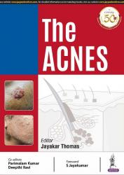 Front cover:the_acnes_by_jayakar_thomas